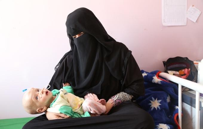 0a3a044aafe00 هناك ما يقدر بـ 1.1 مليون من النساء الحوامل والأمهات المرضعات يعانين من سوء  التغذية وحياتهن معرضة للخطر.